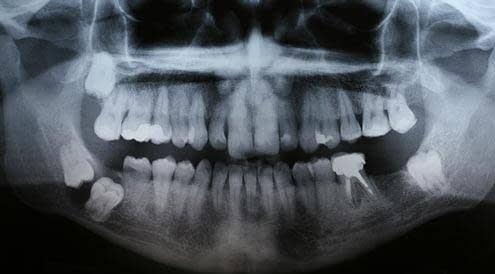 Mejor Cirugía Oral en Badajoz