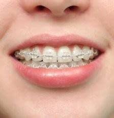 La Cirugía Ortognática puede combinarse con ortodoncia