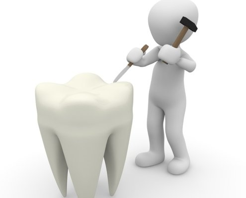 Contorneado dental en Badajoz