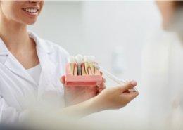 Tus implantes dentales con poco hueso en Badajoz