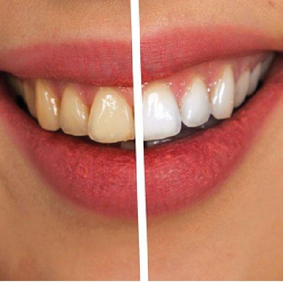 Mejor Clínica de Estética Dental en Badajoz